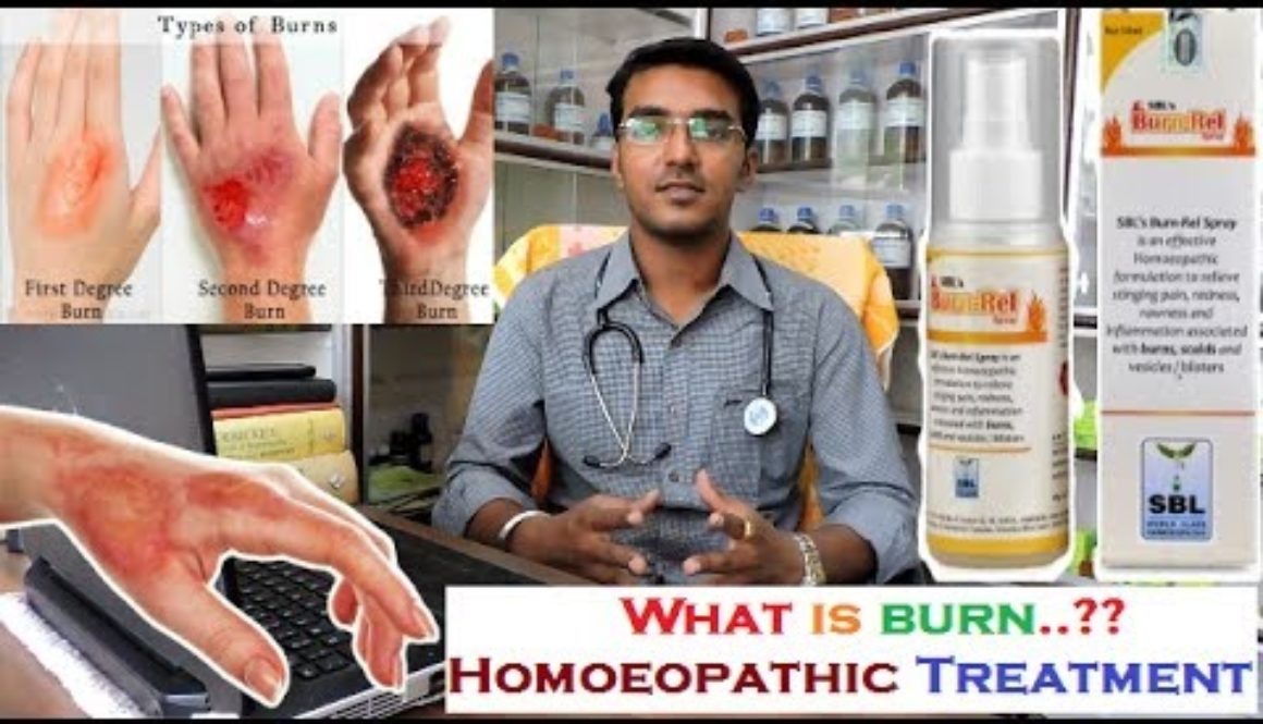 What is Burn | Burn Treatment | How to treat Burn from Homoeopathy