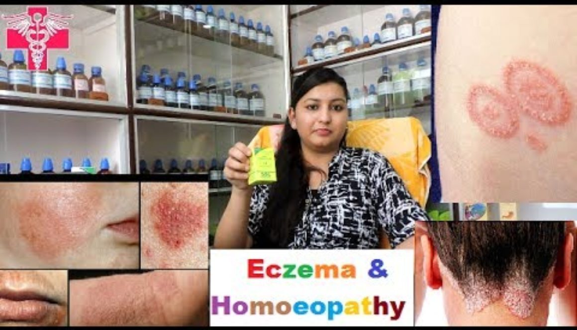 What is Eczema | Explain in Detail with Homoeopathic Treatment | Hindi