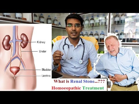 What is Renal Stone | Explain in Detail with Homoeopathic Treatment