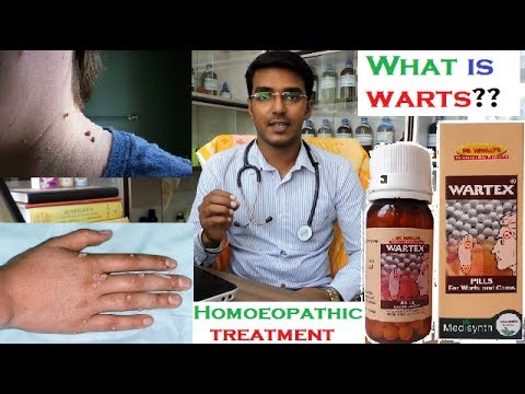 What is Warts | Warts Treatment in Homeopathy | Hindi